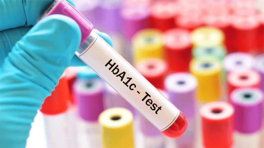 HbA1c - hemoglobinhoz kötött glükóz szintje